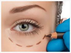 Betamedics - Ophthalmology - blepharoplasty - eyelid